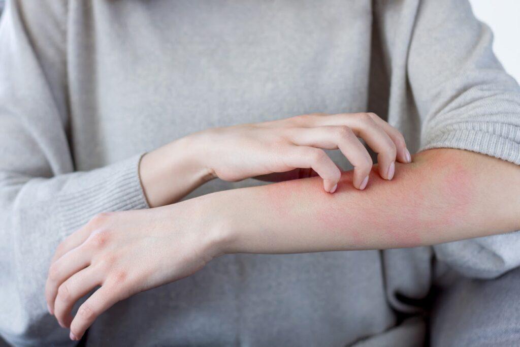 Signos inesperados de alergia
